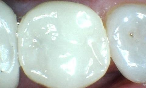 A Broken Tooth Repaired With A Beautiful Metal Free Crown