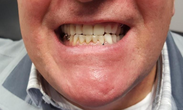 Upper-and-Lower-Partial-Dentures-Crowns-and-Fillings-After-Image
