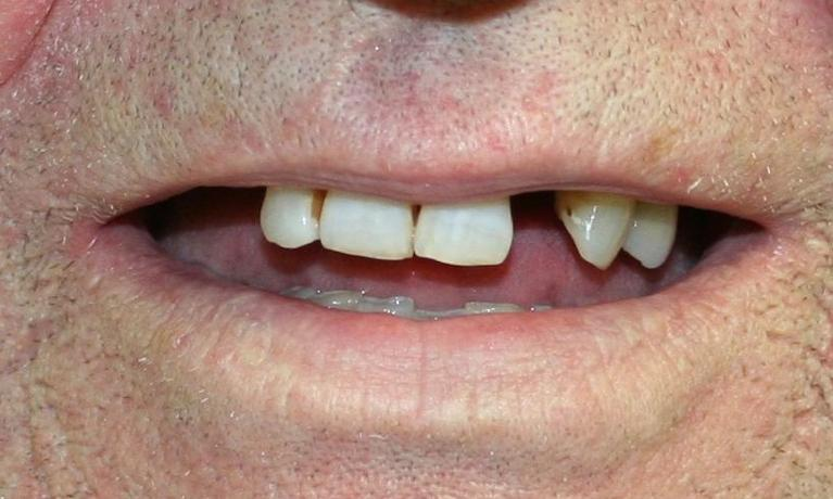 Partial-Dentures-Before-Image