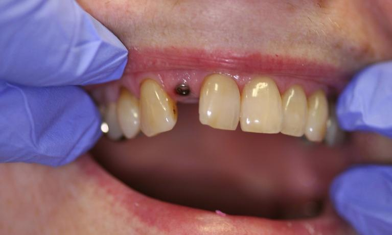 Implant-and-Crown-Before-Image