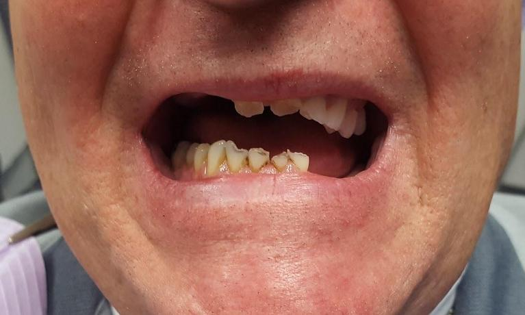 Upper-and-Lower-Partial-Dentures-Crowns-and-Fillings-Before-Image